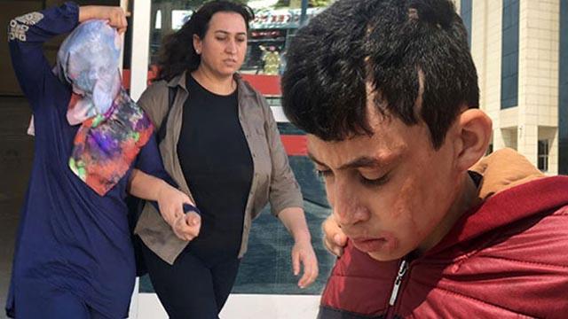 Komşusu ve 3 çocuğuna kezzapla saldırdığı öne sürülen kadın tahliye edildi