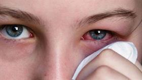 Uzman uyardı... Yaz ayında göz enfeksiyonlarına dikkat!