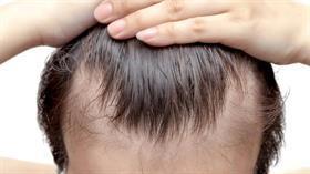 Saç dökülmesi tedavisinde yerli ilaç umut oldu