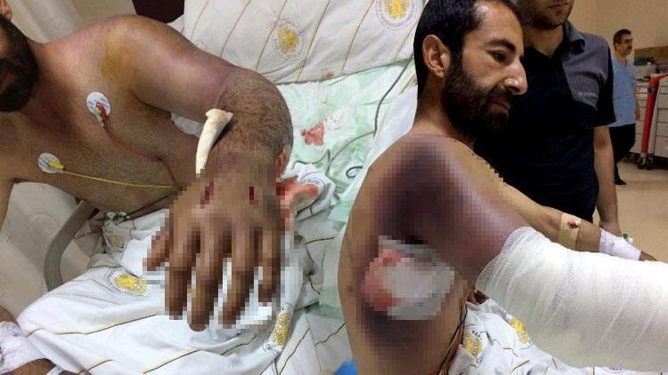 Diyarbakır'da korkunç olay! Yılan bu hale getirdi...