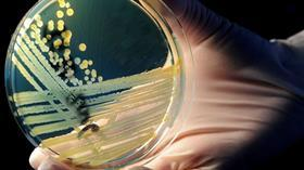 Korkutan açıklama: 2050'de antimikrobiyal direnç her yıl 10 milyon can alabilir