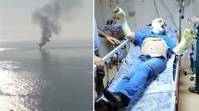 MHP İlçe Başkanı Savaş Ağca teknede çıkan yangında yaralandı