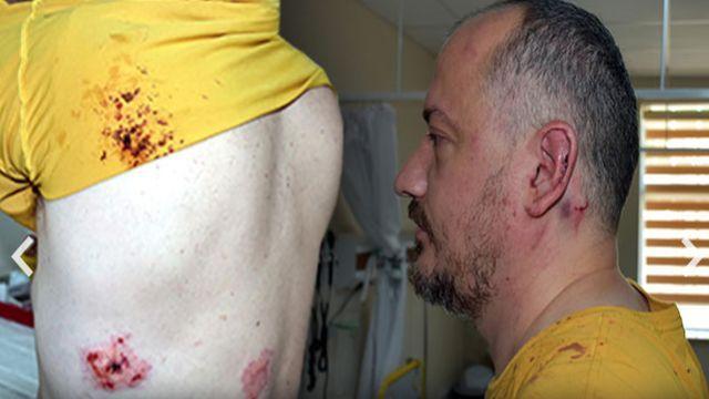 10 kişinin saldırısına uğrayan Gezgin Fatih Koparan, isyan etti