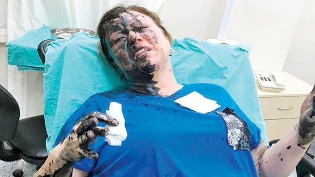 Kadın işletmeciye'kimyasal' saldırı