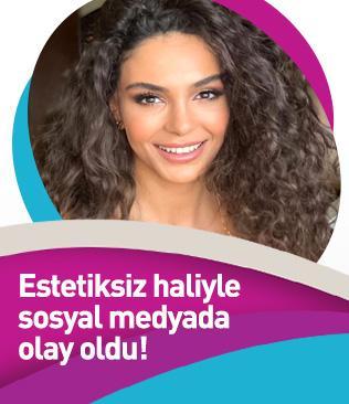 Hercai'nin Reyyan'ı, estetiksiz haliyle sosyal medyada olay oldu!