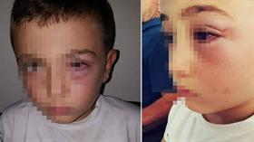 Oğluna su atan çocuğu dövdüğü iddiasıyla gözaltına alındı