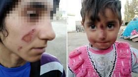 Eşi ve kızının yüzünü yakıp serbest kalmıştı, başsavcılık harekete geçti