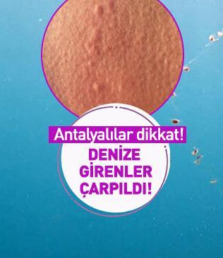 Antalya'da denize girenleri elektrik çarptı! Sebep ise 'knidi'ler...