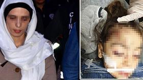 Üvey annenin 'sürekli ağlıyor' diye komaya soktuğu küçük kıza devlet sahip çıktı