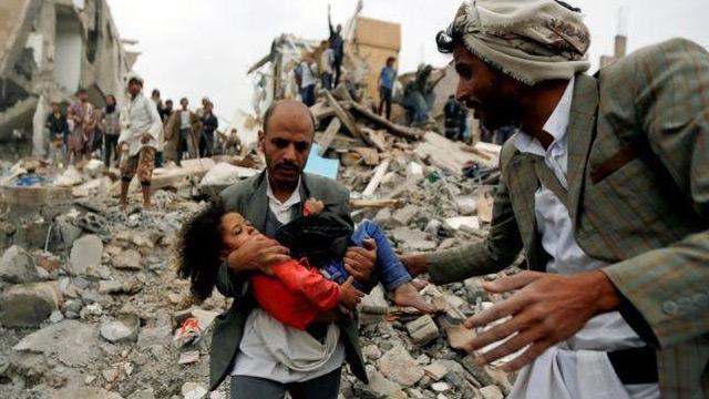 Yemen'de savaşın başladığı günden bu yana 100 binden fazla kişi öldü