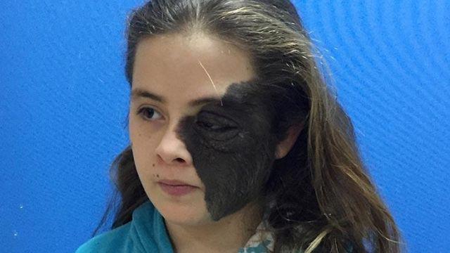 Yüzünde dev ben olan Nazlı, AÜ Hastanesi'nde tedavi olacak