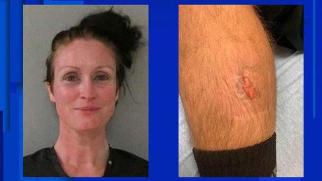Sarhoş kadın polisin bacağını ısırdı
