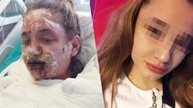 Doktorun verdiği ilaç nedeniyle vücudunda yanıklar oluşan 17 yaşındaki Mina Kara görme yetisini kaybetti