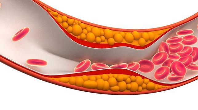 Yüksek kolesterol damarları tehdit eder