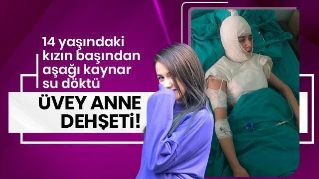 İstanbul'da üvey anne dehşeti! Kaynar su döktü