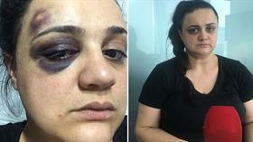 Eşini darp ettiği iddia edilen kocaya verilen cezalar ertelendi