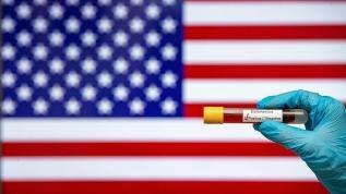 ABD'de Kovid-19'dan ölenlerin sayısı 661 arttı