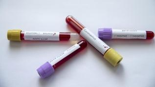 İlk koronavirüs vakası tespit edildi