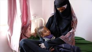 Yemen'de 10 milyon insan açlıkla karşı karşıya