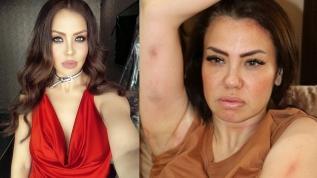 Şarkıcı Lara'ya kaza sonrası dudak operasyonu