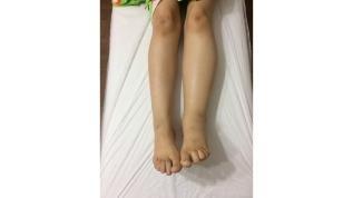Kol ve bacaklardaki şişlik: FİL HASTALIĞI