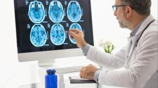 Beyin sağlığını ölçmek mümkün